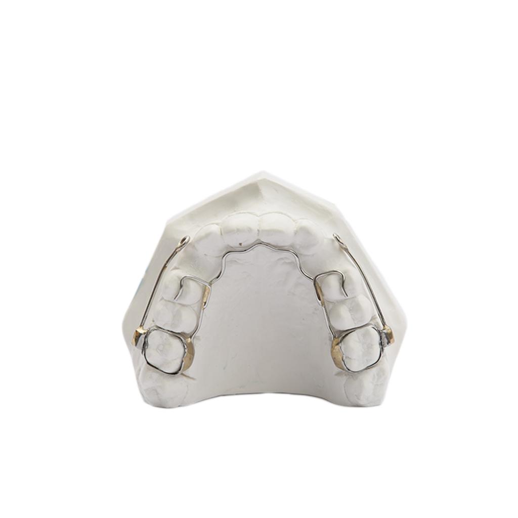 arco-palatale-di-ancoraggio-per-canini-inclusi-1