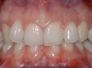 denti-1