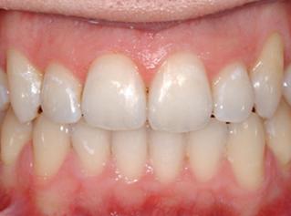 denti-10