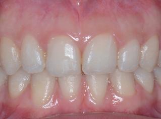 denti-4