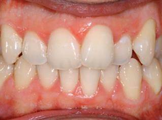 denti-7
