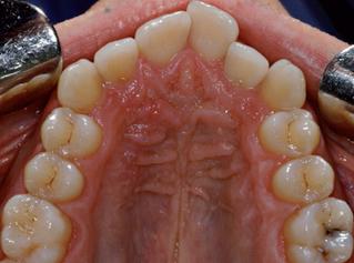 denti-8
