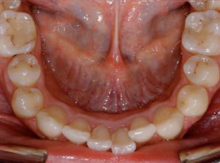 denti-9