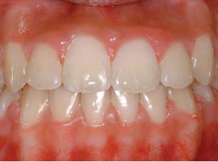 denti-dopo