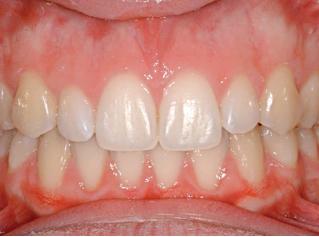 denti-dopo2
