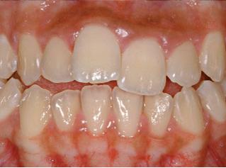 denti-prima