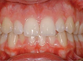 denti-prima2