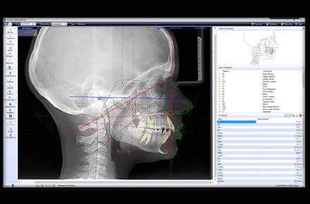 tracciato cefalometrico